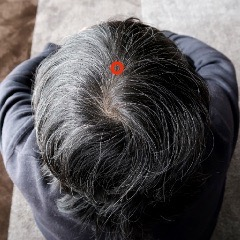 頭痛を治すツボ(百会)